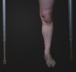 one leg (from the knee down), and two crutches (bottom half), on a black background