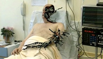 photo of a man lying in a hospital bed with pieces of metal infiltrating his body